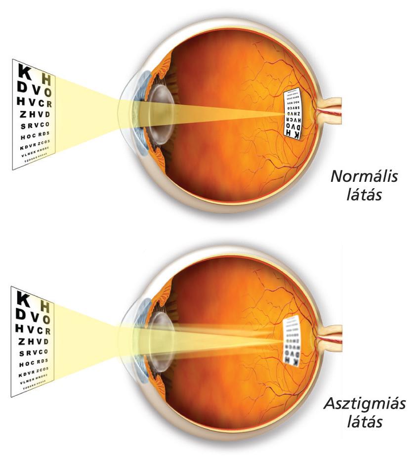 az emberi látás fokozatossága