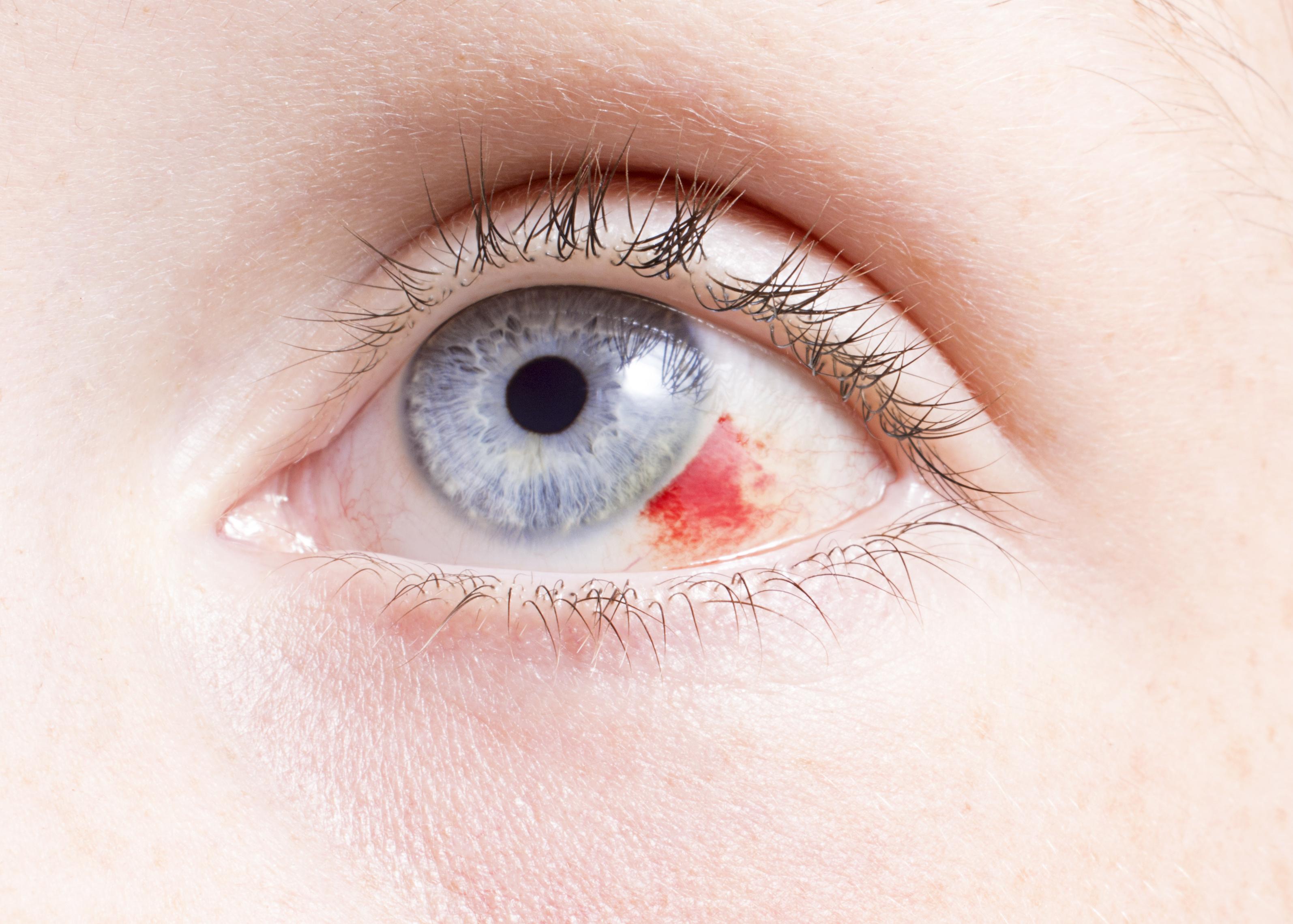 különféle szembetegségek