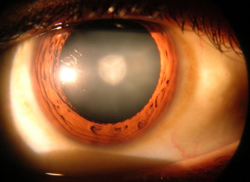 szürkehályog elleni szemcsepp szerzett látásbetegségek