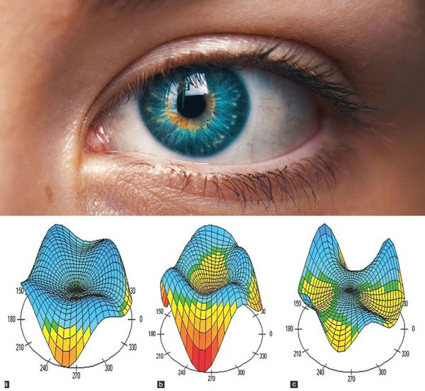 akinek nagyon éles a látása