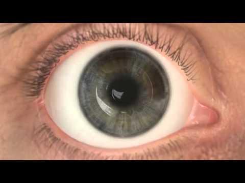 ami drámai módon javítja a látást fórum a látás javításához