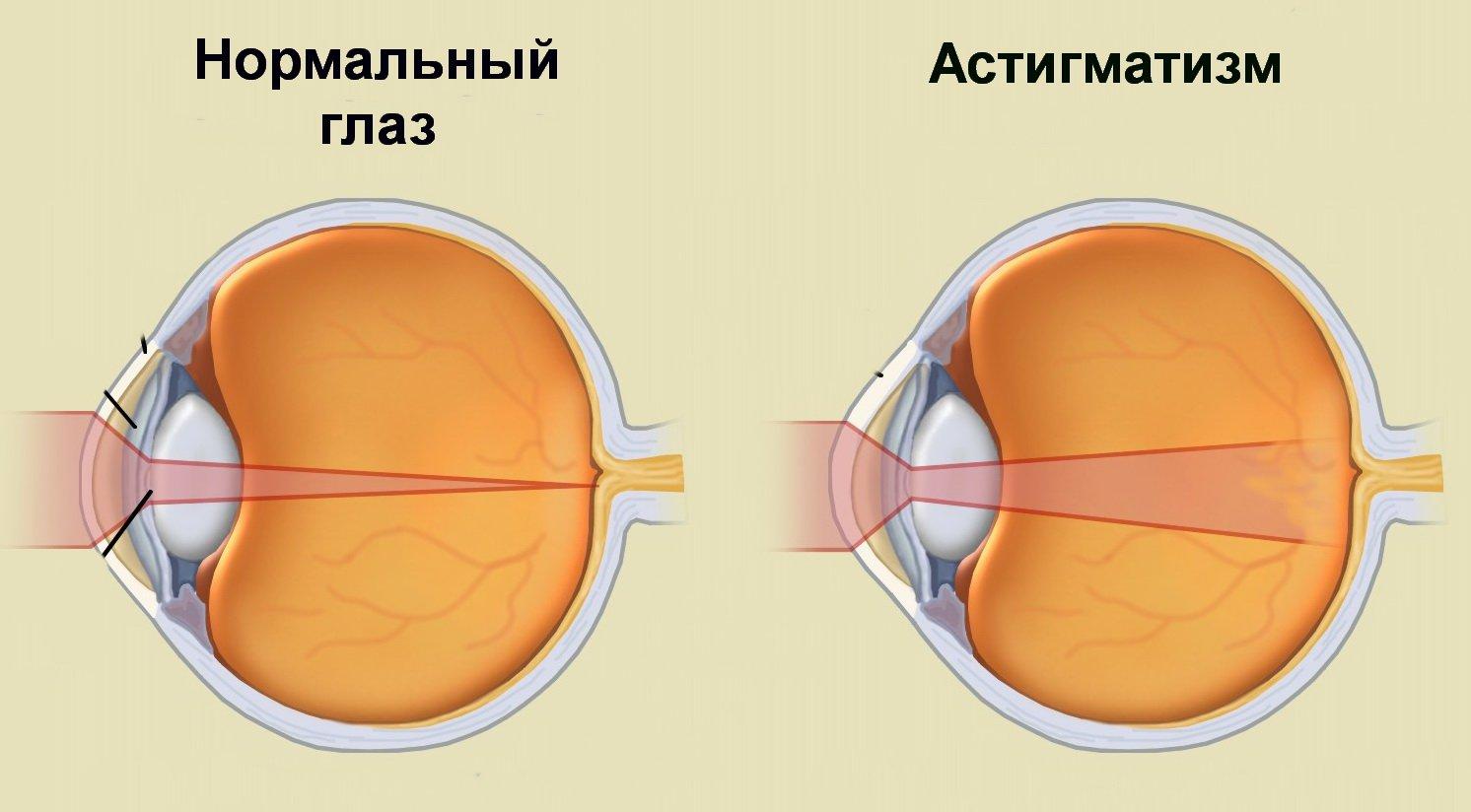 myopia hyperopia videó