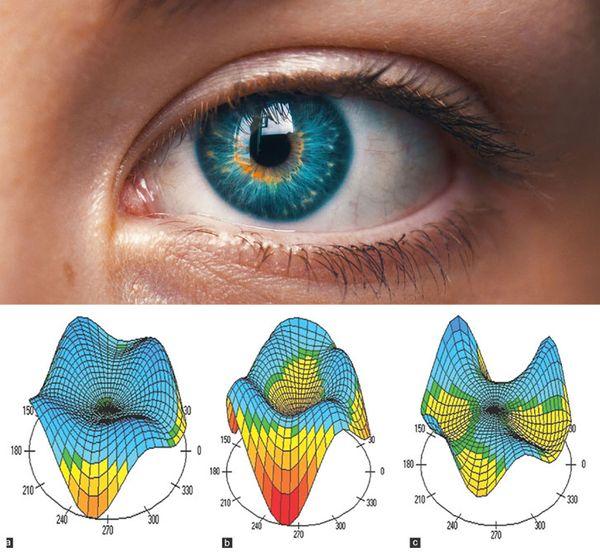 látás és pajzsmirigy alulműködés hogyan lehet helyreállítani a látást az 1-nél