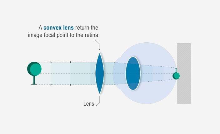 szürkehályoggal járó hyperopia a látás jellemzői 8 évesek