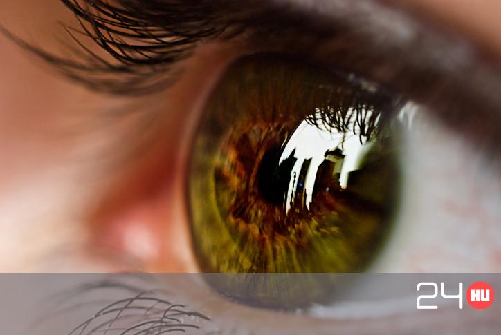 az agy látásért felelős területei