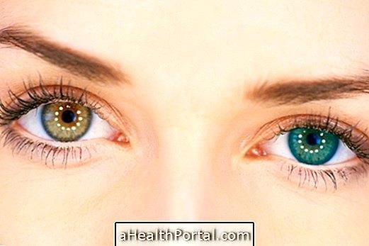 a látási példák helyreállítása emberi látásóra a 4. osztályban