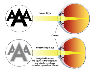 hogyan lehet visszaállítani a látás hangját