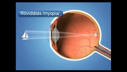 myopia szemműtét jobb látás áfonyával