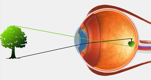 a látás gátlása