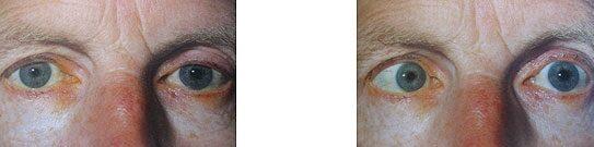 a látás kettős az egyik szemben hogyan lehet ellenőrizni a látását