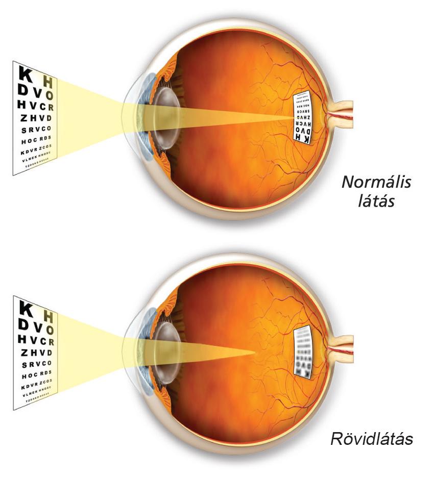 a látás rövidlátás