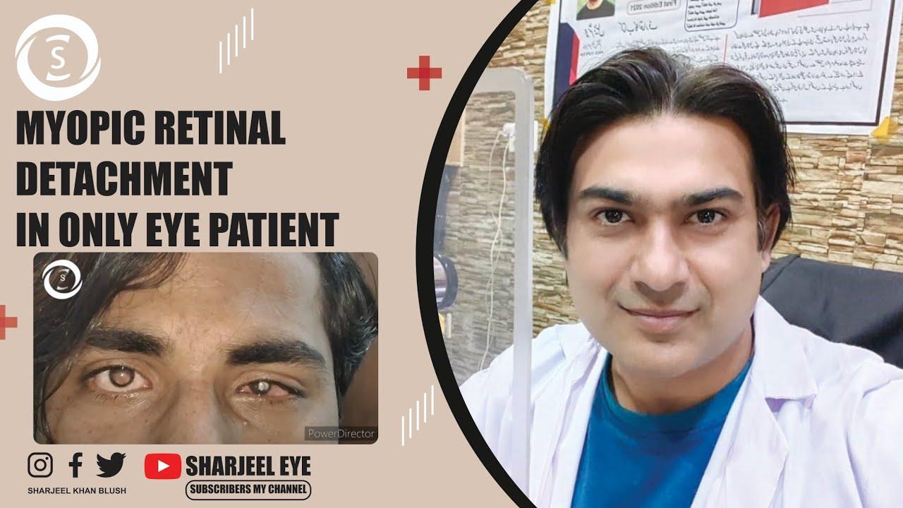 Látástorna a szem számára Hogyan kell kezelni a látást 1