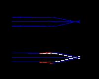 a rövidlátás második császármetszése szemészeti elváltozások