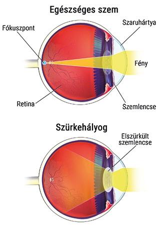 aminek következtében romlik a látás
