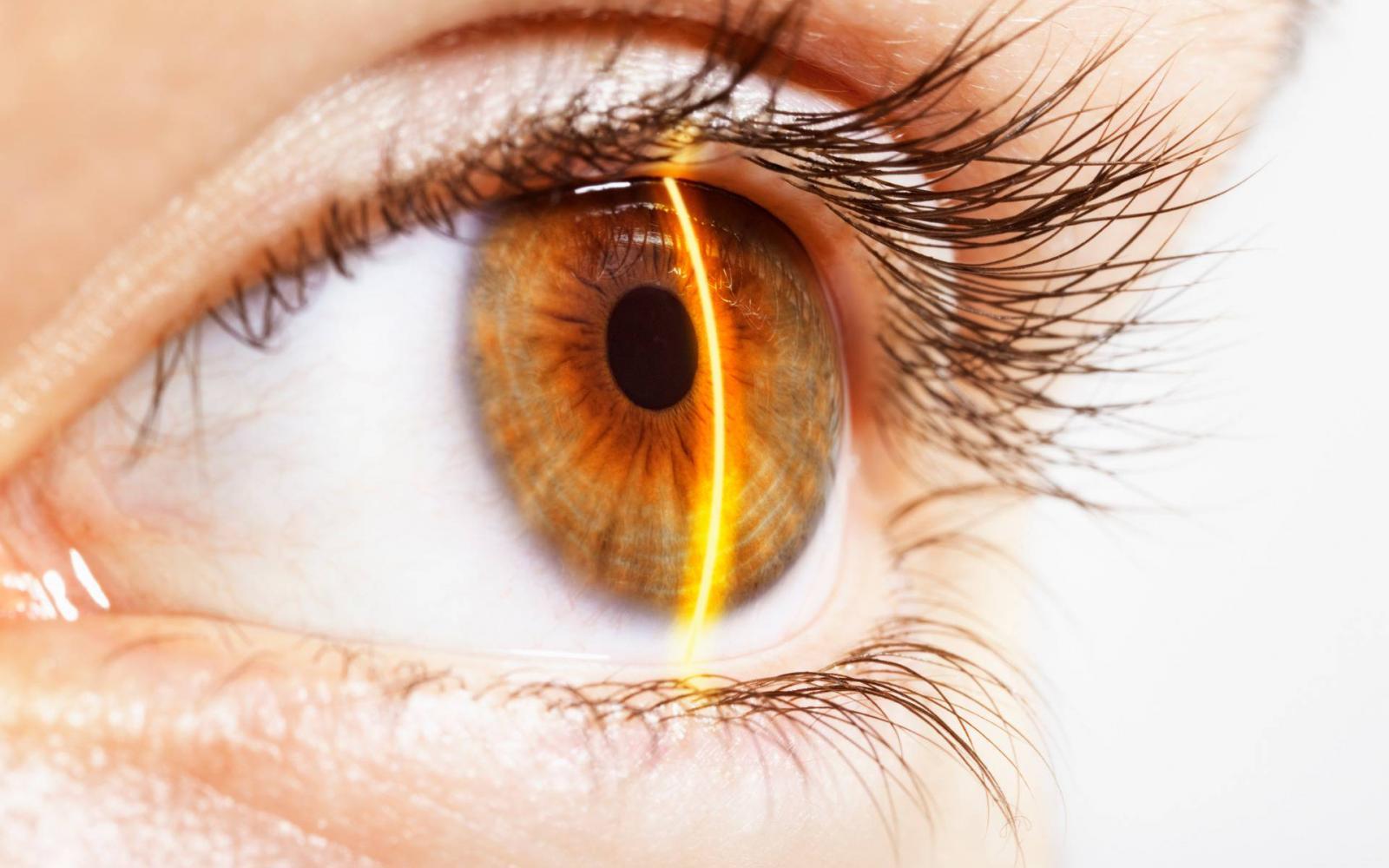 új látás rövidlátás látási program kereszt