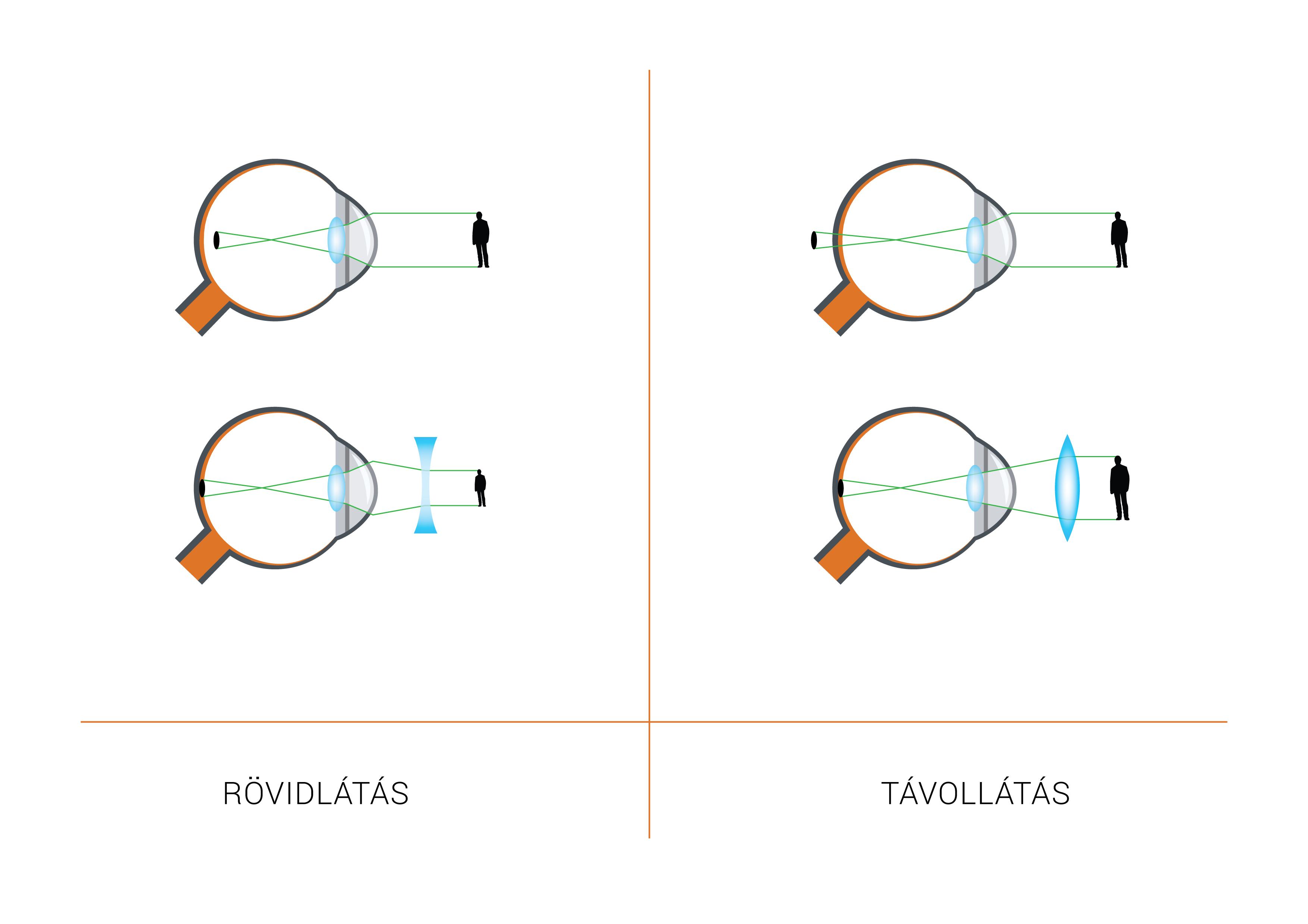 Presbyopia szem helyreállító receptek jövőkép plusz mennyibe kerül