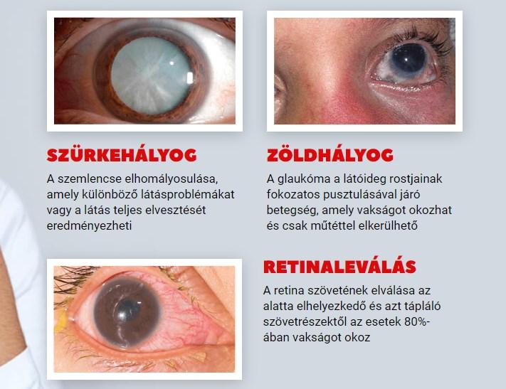állítsa le a rövidlátást jelentés a gyermekek szemészeti ellátásáról
