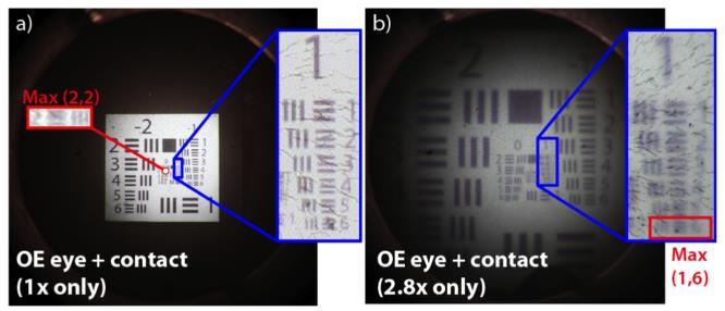 hogyan lehet javítani a látás színvakságát