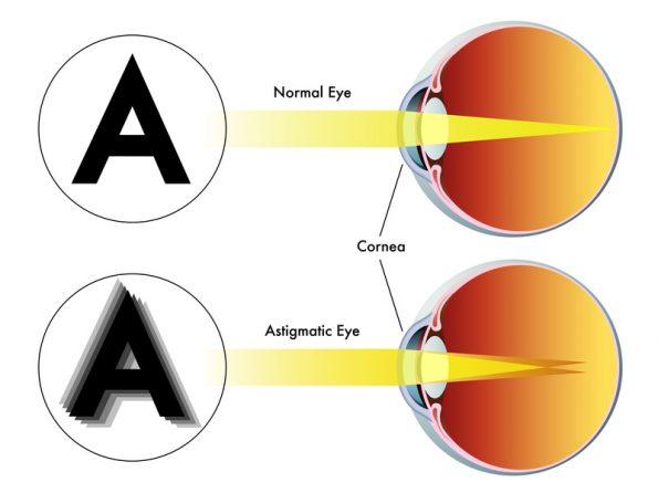 rövidlátás 3 hány dioptriát barna szemű, normális látású nő