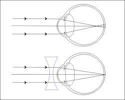 gyakorlatok a látás javítására gyertyával