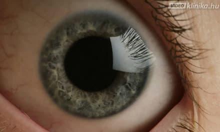 a látás minden nap romlik