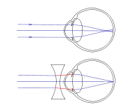 3 5 rövidlátás látás és annak korrekciója