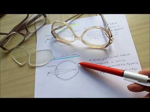 Glaukóma (zöld hályog) tünetei és kezelése