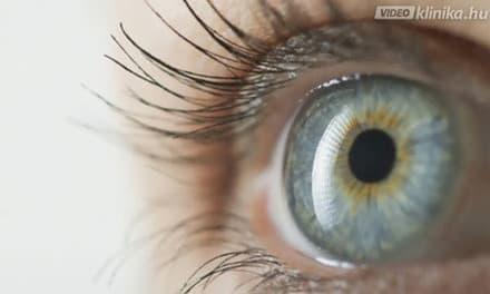 hogyan képződik a kép a szem rövidlátásában a legjobb vitaminok rövidlátása