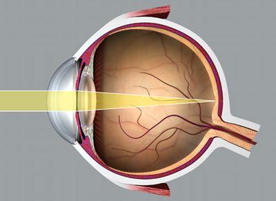 emberi látóhatár a súlyosság hatása a látásra