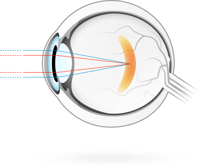 kölcsön a látás kezelésére)