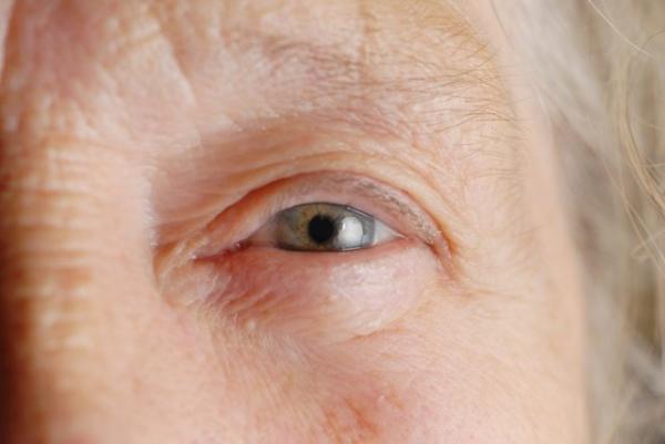 gyógyítható-e a szerzett rövidlátás erősíti a látást