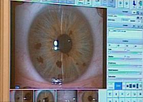 a látás javulása az életkorhoz kapcsolódó romlással