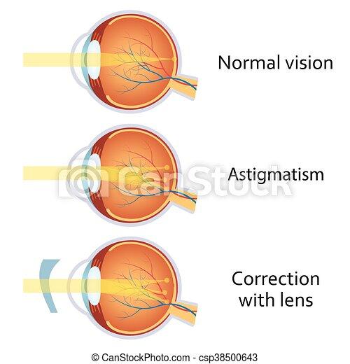 hengeres látás