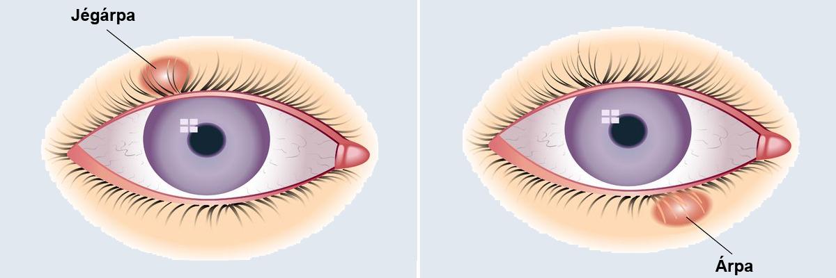 hogyan kezeljük a rövidlátást műtéttel