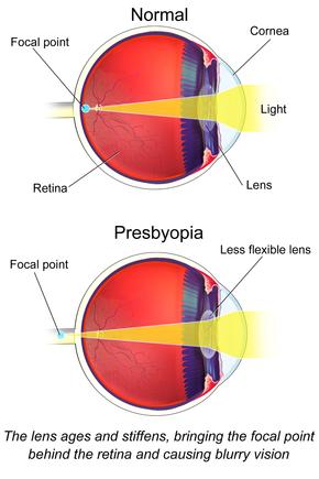 hyperopia és myopia plusz és mínusz