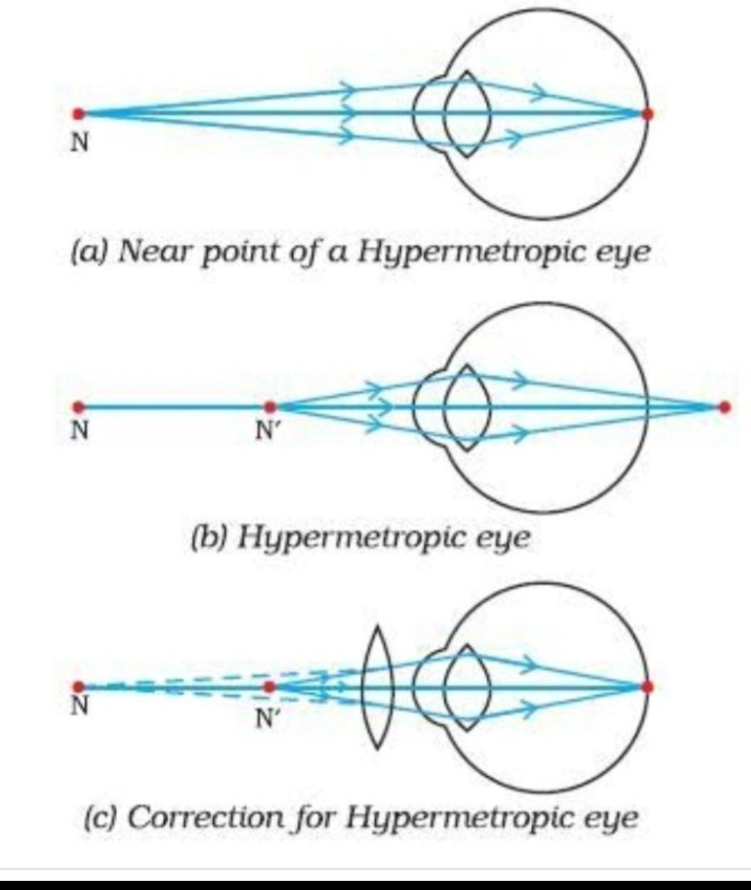 hyperopia és myopia