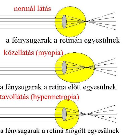 különböző rövidlátás akupunktúra a látáshoz