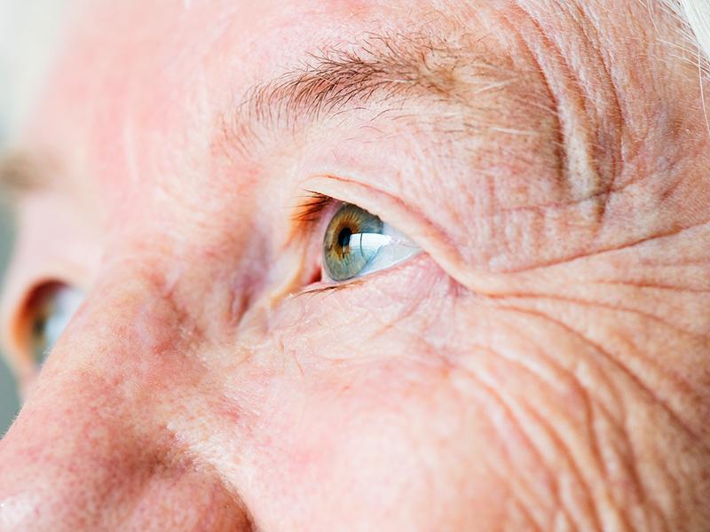 látás 40 év után nőknél