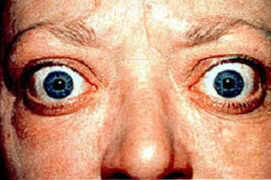 látás Graves-kórral a látásélesség 30