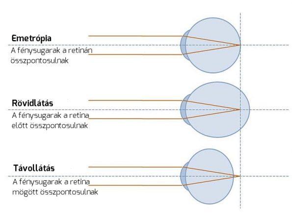 látás mínusz és plusz a látási termékek helyreállításához