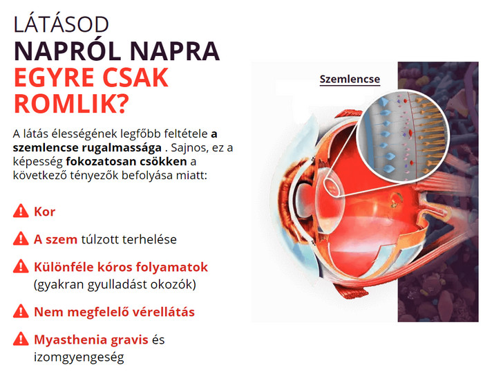 látásvesztés a szemműtét után látás orvi után