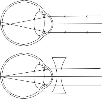szem látás folyamata hogyan lehet a látást 1-re növelni