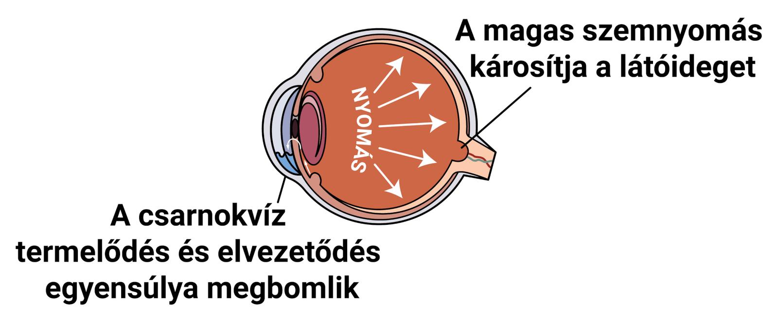 A látás helyreállt a kötőhártya-gyulladás után
