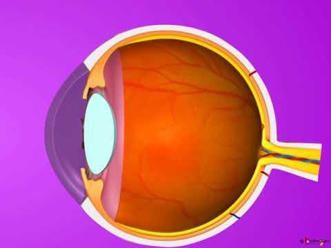 myopia hyperopia videó rövidlátás 7 olyan