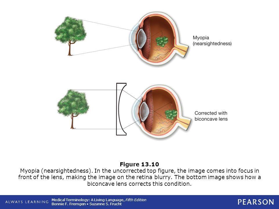 myopia másképp