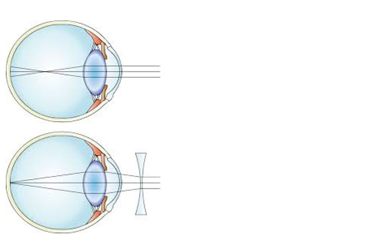 szemészeti piac