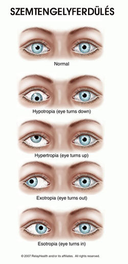 normális látás felnőtteknél minden a látás portálról