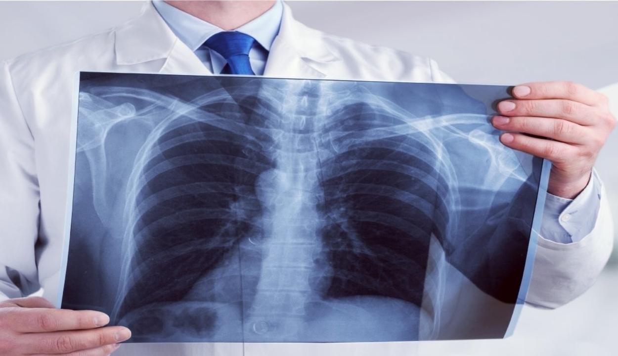 röntgensugárzás alakul ki