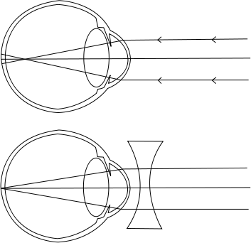 rövidlátás 12. és 13. látás astigmatizmus