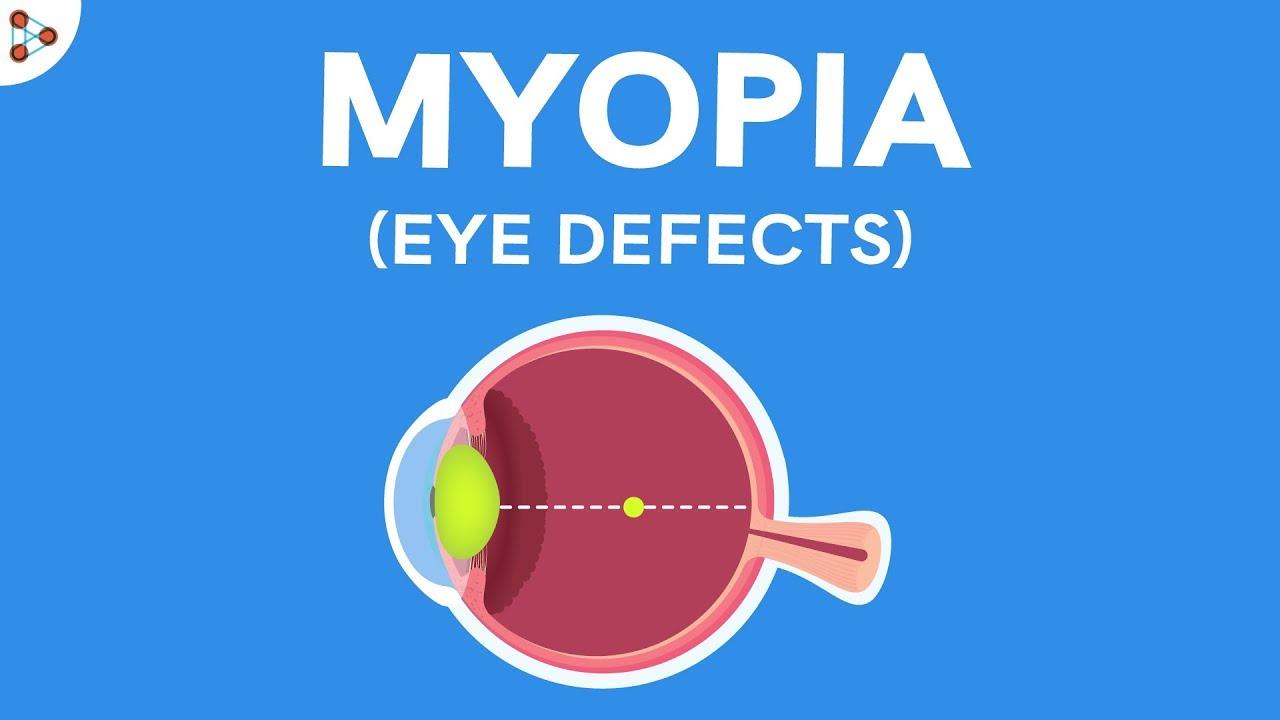 videó a látás ellenőrzéséről